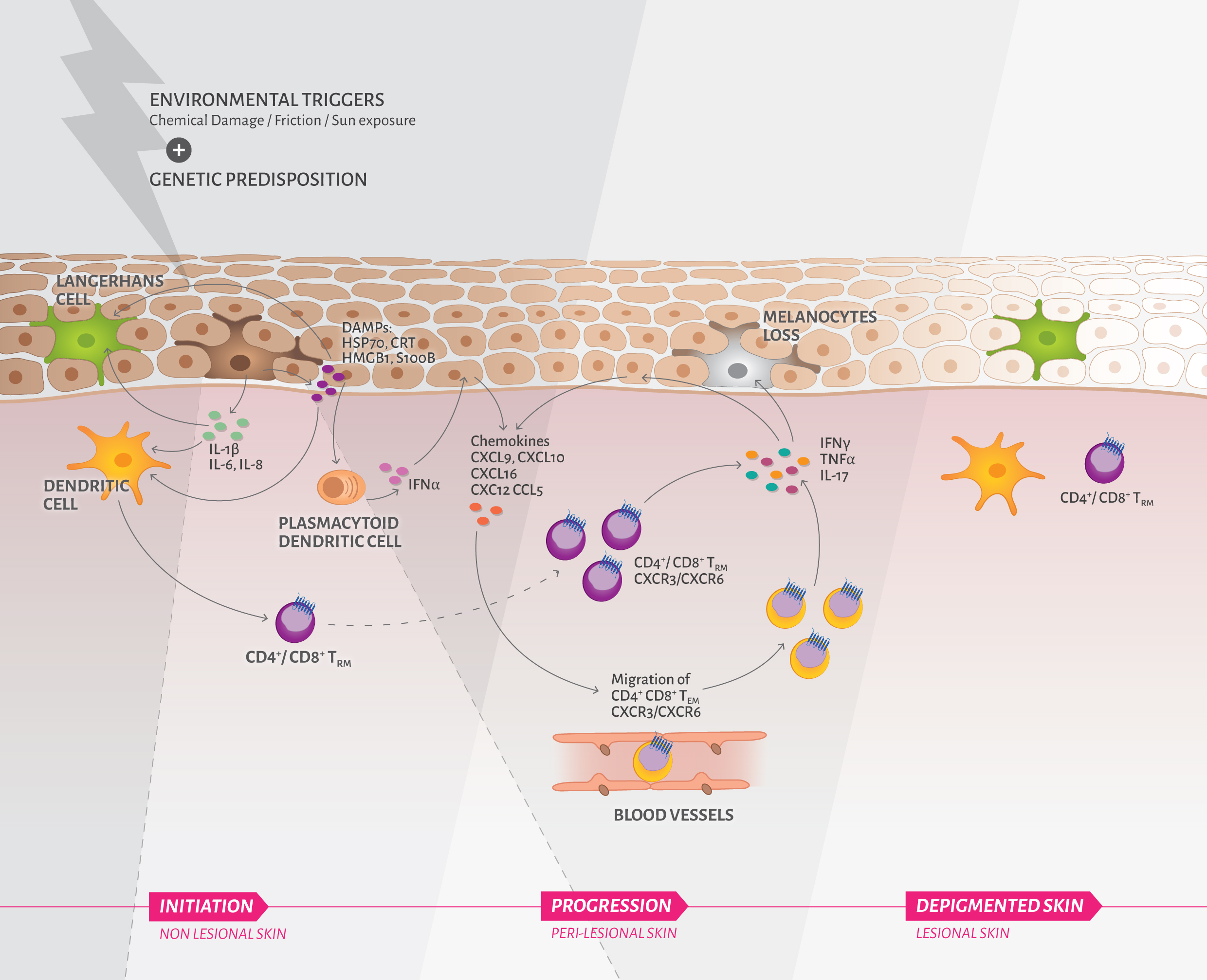 overview of vitiligo pathogenesis